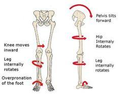 Erfahre, wie du X-Beine korrigieren kannst.