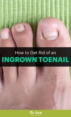 Get Rid of an Ingrown Toenail on Your Own! Do you have a pesky, painful ingrown toenail? There's good news: You can get rid of it all on your own! Young Living Oils, Young Living Essential Oils, Holistic Healing, Natural Healing, Nail Problems, Health And Beauty Tips, Beauty 101, Beauty Tricks, Beauty Secrets