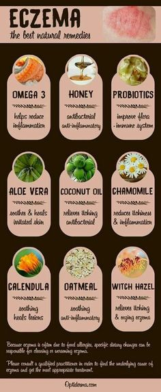 Eczema How to Heal Skin Rashes with Natural Treatments Here apos s a list of the best natural remedies for eczema omega 3 honey probiotics aloe vera coconut oil chamomile calendula oatmeal witch hazel Which one to try Check this out www optiderma Psoriasis Remedies, Natural Acne Remedies, Homeopathic Remedies, Natural Cures, Health Remedies, Natural Healing, Natural Skin, Natural Foods, Health And Fitness
