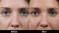 Image result for tear through filler
