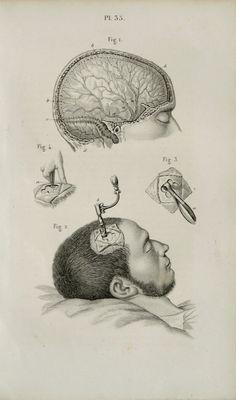 1857 Antique bizarre print of HUMAN ANATOMY. SURGERY. Human Head. Brain. 158 years old lithograph.