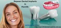 Onerous Tooth Implant Before And After Cosmetic Dentistry Tooth Extraction Aftercare, Tooth Extraction Healing, Smile Dental, Dental Care, Dental Group, Teeth Implants, Dental Implants, Dentist Day, Restorative Dentistry