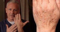 Un medico americano ha scoperto un rimedio naturale per eliminare le macchie della pelle