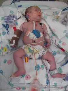 Samuel was born with HLHS and Aortic Stenosis. Doctors decided transplant would be the best route for him. At only 3 weeks old he had a heart transplant. He waited 9 days. The average wait is 58 days. He is a living miracle. He has had one episode of rejection and a balloon cath procedure to fix his coarctation.  <3