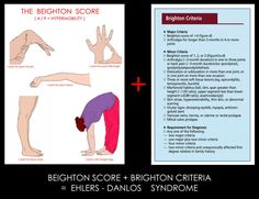 It is critical to use the Brighton criteria for diagnosing Ehlers-Danlos Syndrome – Hypermobility Type (HEDS). The Beighton Score is only PART of the overall diagnostic criteria for HEDS. Remember the difference like this: Using BRIGHTON is a BRIGHT idea; relying on Beighton along will come back to bite you.