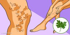 More than of adults have varicose veins. Varicose veins can be caused by hormonal imbalance, prolonged sta Herbal Remedies, Natural Remedies, Hormone Imbalance, Varicose Veins, Rodin, Aloe Vera, Herbalism, Aurora Sleeping Beauty, Daily Magazine