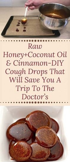Raw honey + coconut oil & cinnamon-DIY cough drops that will give you a trip to . - Raw honey + coconut oil & cinnamon DIY cough drops that will give you a trip to … - Cold Remedies, Natural Health Remedies, Natural Cures, Herbal Remedies, Natural Healing, Natural Treatments, Sore Throat Remedies, Natural Cough Remedies, Natural Foods