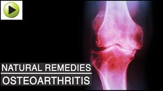 "The word arthritis comes from two Greek words that translate to ""joint inflammation"". However, as those who've lived with arthritis can testify, the pain experienced can feel like a lot more than just inflammation. Rheumatoid Arthritis Treatment, Knee Arthritis, Arthritis Pain Relief, Types Of Arthritis, Arthritis Exercises, Ayurvedic Home Remedies, Natural Remedies For Arthritis, Health Remedies"