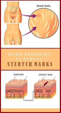 9 PERFECT HOME REMEDIES TO REMOVE STRETCH MARKS – Toned