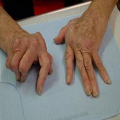 Best 5 Home Remedies For Rheumatism