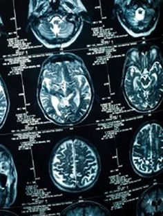 People who suffer from severe schizophrenia have very different brain networks compared to others with milder schizophrenia, bipolar disorder, or no mental illness, according to new research from Canada's Centre for Addiction and Mental Health (CAMH). Researchers...