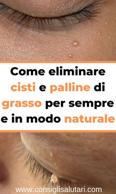 How to eliminate cysts and balls of fat forever and in mod .- Come eliminare cisti e palline di grasso per sempre e in modo naturale How to eliminate cysts and balls of fat forever and naturally out - Health Vitamins, Castor Oil, How To Get Rid, Health Tips, Natural Beauty, The Cure, Fat, Medical, Skin Care