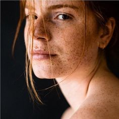 Ginger and Freckles