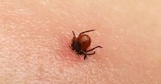 In Virginia, getting ticks is just part of life when you love the outdoors . There are a lot of myths about how to remove ticks. Removing a ticks isn't painf. Tick Removal, Chronic Fatigue Syndrome, Lyme Disease, Sciatica, Multiple Sclerosis, Pest Control, Fibromyalgia, How To Remove, Plants