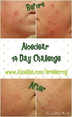 Aloette's Aloeclear 14 Day Challenge  #Aloeclear