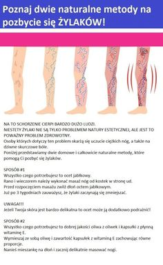 Poznaj dwie naturalne metody na pozbycie się ŻYLAKÓW!!! Health Fitness, Relax, Healthy, Diet, Health, Fitness, Health And Fitness