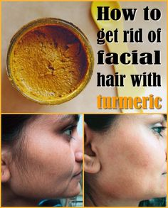 How to get rid of facial hair with a turmeric paste using turmeric powder and water to form a paste. Apply to area where there is unwanted hair and leave on for about 20 minutes. Repeat daily as unwanted hair will thin and eventually stop growing. Crema Facial Natural, Natural Skin, Natural Beauty, Natural Facial Hair Removal, Face Hair Removal, Beauty Care, Beauty Skin, Beauty Secrets, Beauty Hacks