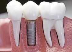Este modelo muestra que los normales y en medio un implante de acero en las encías