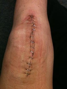 "I had LTKR on Dec 8, 2011.   I had 15 staples and the incision is about 6"".  I am 'now' 4 weeks post op and still have my butterfly stitches on...but from what I can see in between....the scar look very good. I'm quiet impressed...so far. :biggrin:"