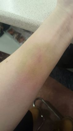 old bruise with yellow and purple