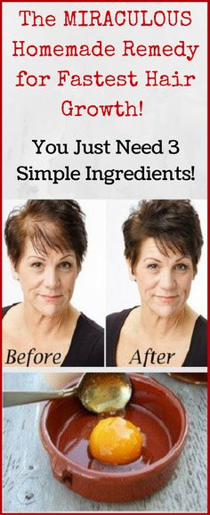 The MIRACULOUS Homemade remedy for fastest hair growth! You just need 3 simple ingredients...