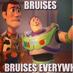 This me everyday... Bruises everywhere! I think I get them mostly in my sleep.