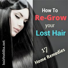 hair loss remedies 17 Things I did to Regrow my Lost Hair (Update - You can regrow your lost hair using natural remedies. Here are my top tips to stop hair loss and regrow hair. Hair Remedies For Growth, Hair Loss Remedies, Hair Growth, Hair Loss Causes, Prevent Hair Loss, Chicken Honey, Regrow Hair Naturally, Natural Hair Loss Treatment, Male Pattern Baldness