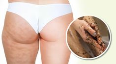 rimedio naturale contro la cellulite