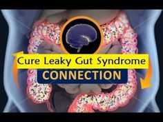 Cure Leaky Gut Syndrome - How to Heal Leaky Gut