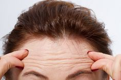 Forehead wrinkles can be banished easily with some natural yet very effective remedies. Know about them and get rid of ugly forehead lines. Double Chin Exercises, Types Of Cardio, Face Exercises, Toning Exercises, Stretches, Rides Front, Stock Image, Skin Serum, Natural Home Remedies