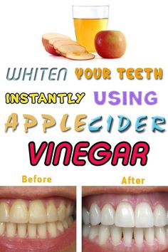 15 Super Easy Homemade Teeth Whitening Remedies to Get those Pearly Whites Back! 15 Super Easy Homemade Teeth Whitening Remedies to Get those Pearly Whites Back! Apple Cider Vinegar Remedies, Apple Cider Vinegar Benefits, Apple Cider Vinegar Detox, Home Remedies For Flu, Natural Cold Remedies, Flu Remedies, Health Remedies, Herbal Remedies, Hair Remedies