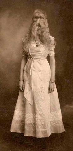 """Alice E. Doherty, también conocida en el escenario como """"El bebé de lana de Minnesota"""""""