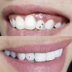 Very cute affordable teeth gems Easy to apply perfect for ages gems diamonds Gems Jewelry, Cute Jewelry, Diamond Jewelry, Dental Jewelry, Tooth Gem, Diamond Teeth, Grills Teeth, Colourpop Eyeshadow, Skin Gel