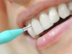 How To Prevent Cavities, Dental Health, Brush Cleaner, Dentistry, Being Used, Blog, Brazilian Blowout, Tooth Brushing, Make Up