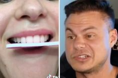 TikTokers Have Been Shaving Their Teeth Down With Nail Files So This Orthodontist Explained Why It's A Bad Idea Buzzfeed News, Explain Why, Nail File, Shaving, Teeth, Social Media, People, Social Networks, Folk
