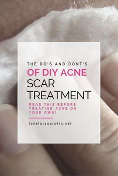 Want to learn what not to do for your acne scars? Here is a great list of tips and suggestions for acne scar treatment that you can use.