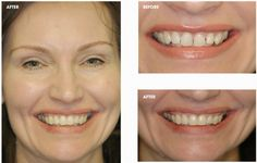 Want straighter teeth to improve how you look and feel? At Bury Dental Centre, we can help.