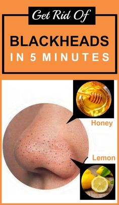 How to Get Rid of Blackheads in Few Minutes
