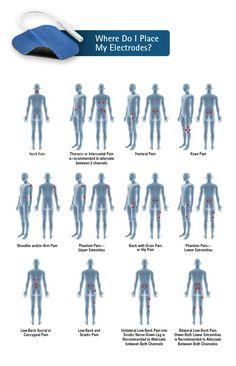 Unlock Your Hip Flexors Hip Pain, Neck Pain, Tens Electrode Placement, Tens Unit Placement, Hip Flexor Exercises, Piriformis Syndrome, Sciatica, Physical Therapy, Pain Relief