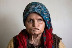 Zarrineh Bibak, 65 years old. #refinery29 http://www.refinery29.com/2015/07/90535/iran-leprosy-photography#slide-3