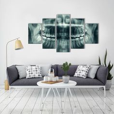 Dental X-Ray - 5 Panel Canvas Art Set #art #graphics #home #artsy #artoftheday #picture #artwork #homedecor #instaart #beautiful
