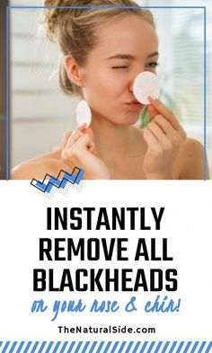 Find 3 easy and Simple Ways to Instantly Remove all your blackheads on your nose and chin. Beauty tips via thenaturalside.com #beauty #natural #blackheads #skincare #WartsOnFace Beauty Hacks Skincare, Beauty Tips, Beauty Secrets, Beauty Products, Diy Beauty, Beauty Hacks For Teens, Natural Sleep Remedies, Get Rid Of Blackheads, Anti Aging Tips