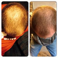 Great It Works Hair Skin And Nails Before After 1Boosts
