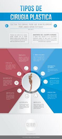Los diferentes tipos de cirugías plásticas. #infografía #belleza #estética