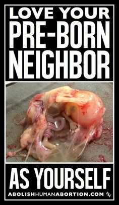 Love your pre-born neighbor as yourself. End abortion I Choose Life, Life Is Precious, Life Is A Gift, Pro Choice, Faith Hope Love, Pro Life, Decir No, Conservative Values, Respect Life