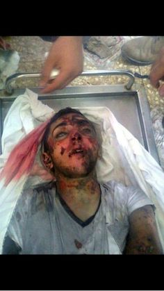 Obama your hands stained in blood you are sharing the Israeli zionest massacres in Gaza
