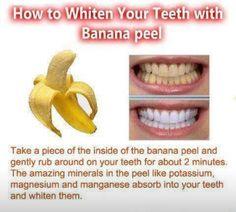 Banana for white teeth .....