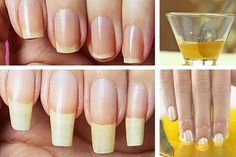 Grow Long Nails, Grow Nails Faster, How To Grow Nails, Nail Growth Tips, Safe Nail Polish, Nail Problems, Beauty Hacks Nails, Manicure And Pedicure, Nail Tips