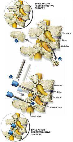 Sciatic Pain, Sciatic Nerve, Nerve Pain, Back Surgery, Spine Surgery, Spinal Fusion Surgery, Spondylolisthesis, Hernia, Degenerative Disc Disease