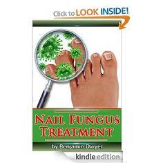 Causes of Toenail Fungus and Fingernail Fungus | Toenail Fungus